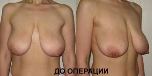 foto-visyachaya-grud