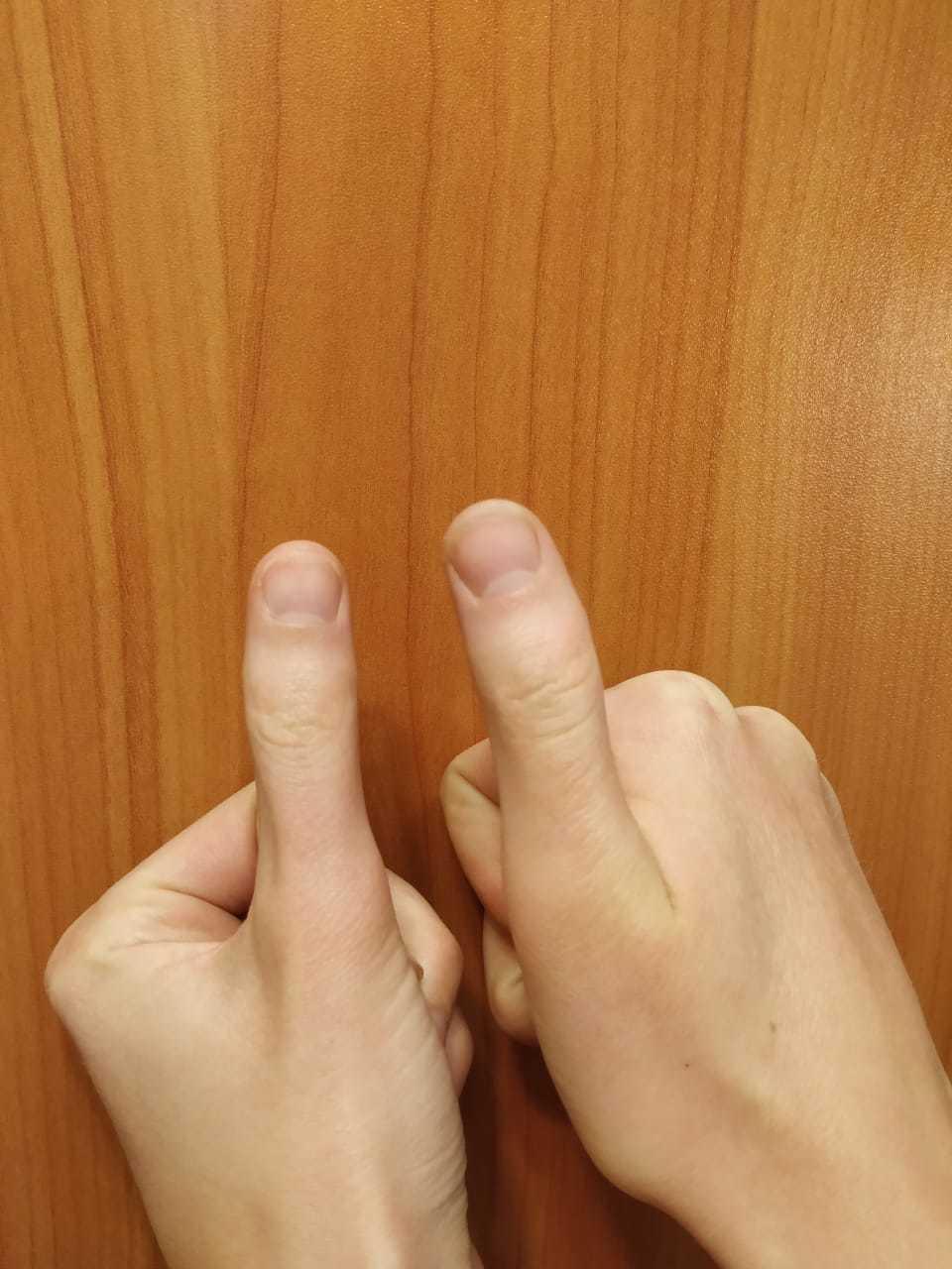 крючковатые пальцы фото что парочка