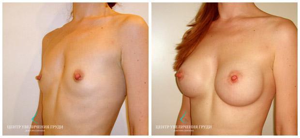 увеличение фото голых