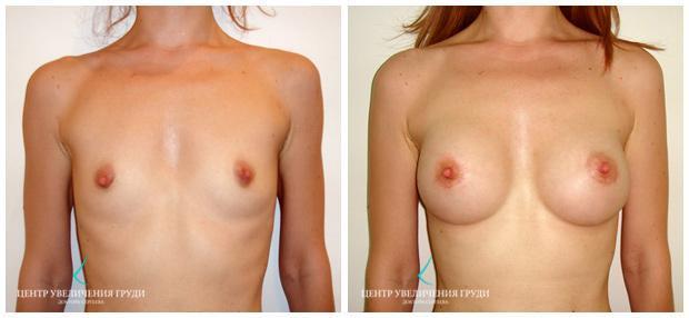 средняя грудь фото