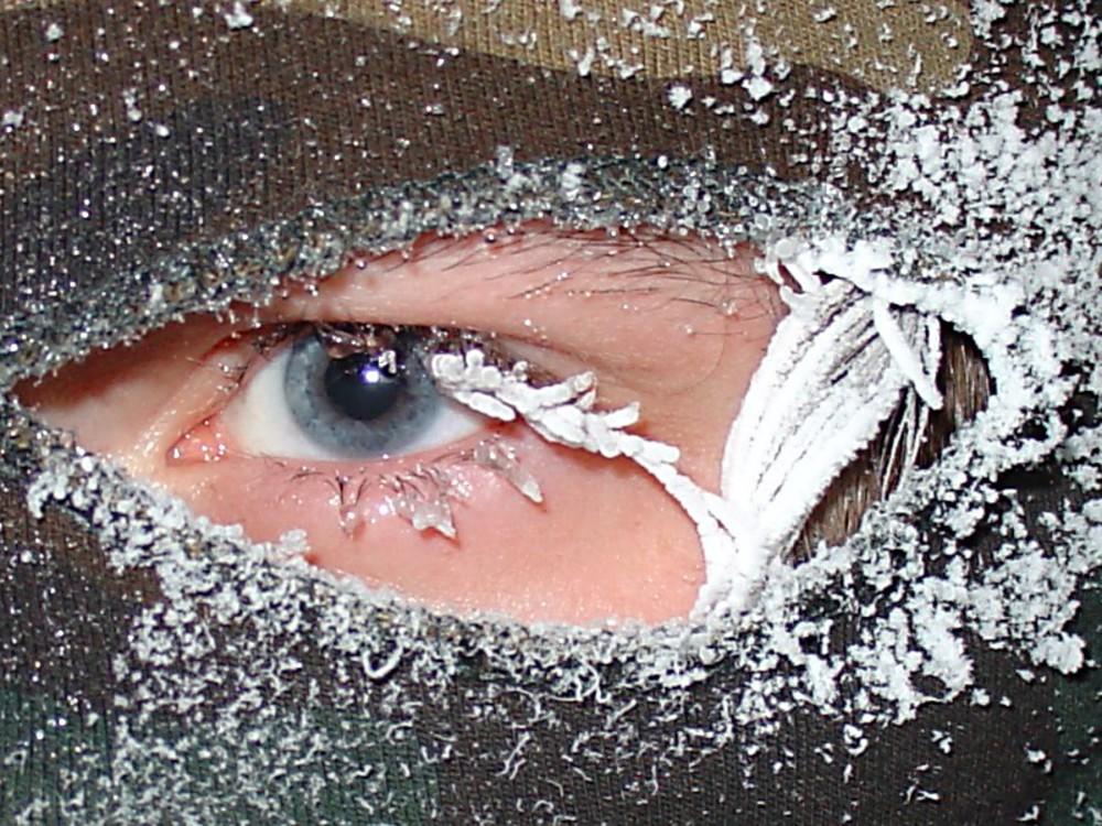 почему не замерзают глаза показал недавно