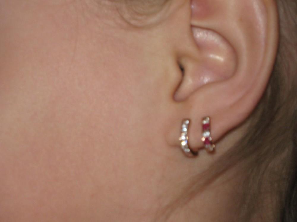 Прокалывание ушей у детей имеет свои противопоказания.